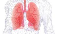 Sequelas da Covid-19 em pessoas que eram saudáveis levaram ao transplante pulmonar